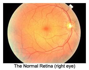 an analysis of the topic of the magnified vessels of retina Start studying retina and vitreous and experimental analysis of retinal vessel developed retina and avascular retina, where vessels have.